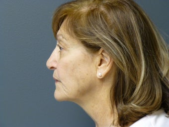 74yo female before Ultherapy for face and neck after 906959