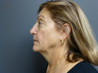 74yo female before Ultherapy for face and neck before 906959