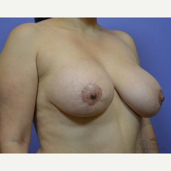 35-44 year old woman treated with Breast Lift with Implants after 3386477