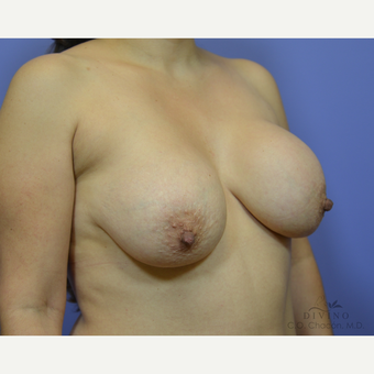 35-44 year old woman treated with Breast Lift with Implants before 3386477
