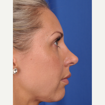 37 year old woman treated with Rhinoplasty after 3220384