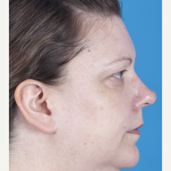35-44 year old woman treated with Rhinoplasty before 3159544