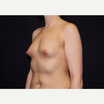 25-34 year old woman treated with Breast Implants before 3441721
