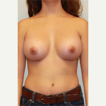 25-34 year old woman treated with Breast Augmentation after 3026808
