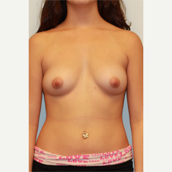 25-34 year old woman treated with Breast Augmentation before 3026808