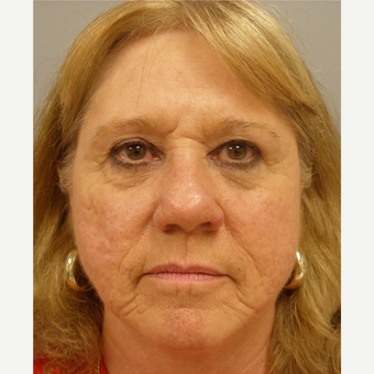 55-64 year old woman treated with Facelift before 3109408