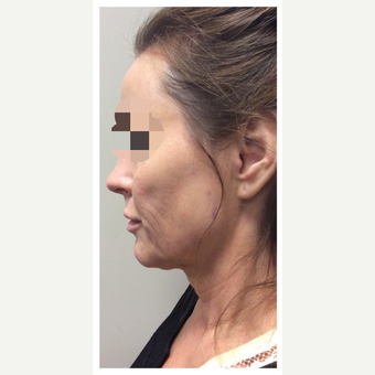 45-54 year old woman treated with Ultherapy before 3284163