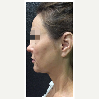 45-54 year old woman treated with Ultherapy after 3284163
