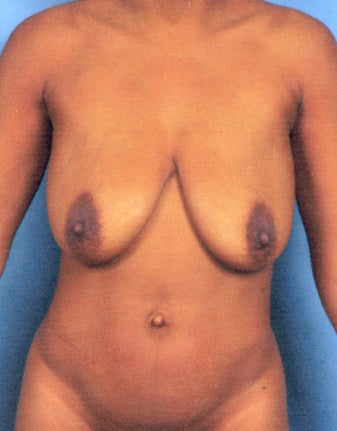Abdominoplasty (Tummy Tuck) and Breast Lift without Implants before 1474829