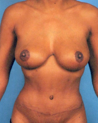 Abdominoplasty (Tummy Tuck) and Breast Lift without Implants after 1474829