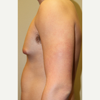 18-24 year old man treated with Male Breast Reduction before 3215451