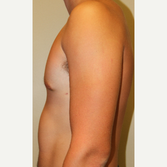 18-24 year old man treated with Male Breast Reduction after 3215451
