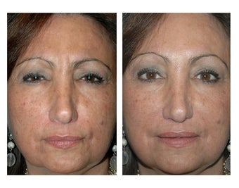 Botox for Frown Lines before 896477