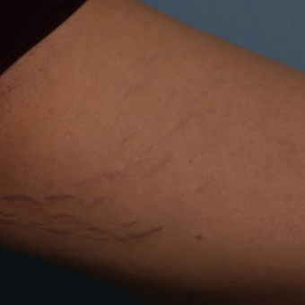 18-24 year old woman treated with Stretch Marks Treatment with ICON Frax 1540 laser