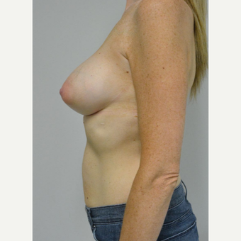 35-44 year old woman treated with Breast Augmentation after 3303495