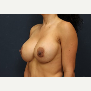 35-44 year old woman treated with Breast Implant Revision after 3344036