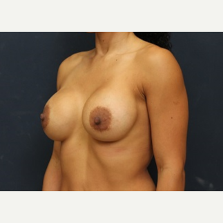 35-44 year old woman treated with Breast Implant Revision before 3344036