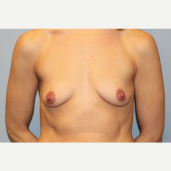 25-34 year old woman treated with Breast Augmentation before 3569615