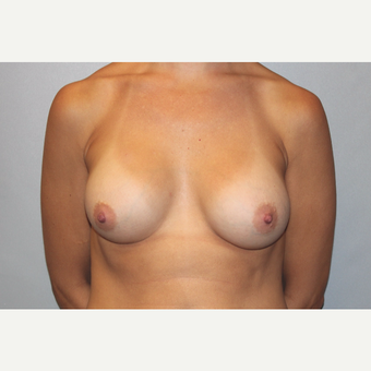 25-34 year old woman treated with Breast Augmentation after 3569615