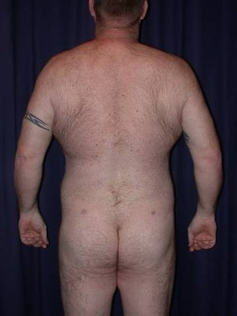 Male Liposuction after 696921