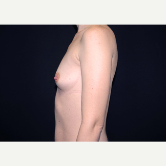 25-34 year old woman treated with Breast Implants before 3441479