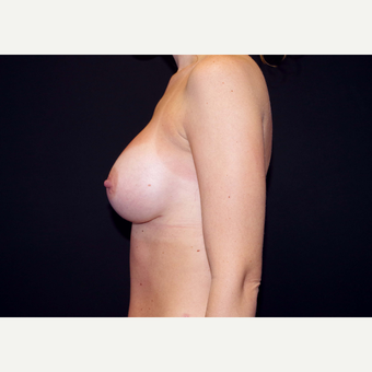 25-34 year old woman treated with Breast Implants after 3441479