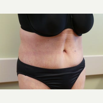 Body Lift after massive weight loss preop BMI 26