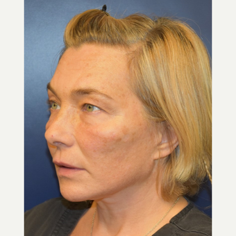 45-54 year old woman treated with Lower Face Lift after 3428275