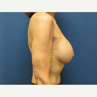 55-64 year old woman treated with Breast Reconstruction 1818379