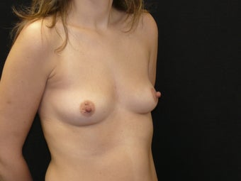Breast Augmentation before 923856