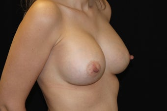 Breast Augmentation after 923856