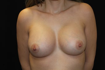 Breast Augmentation 923856
