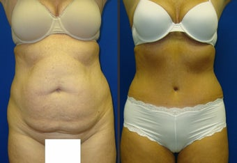 Tummy Tuck before 340564