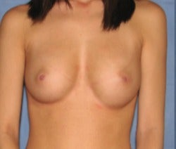 18-24 year old woman treated with Breast Augmentation before 3344124