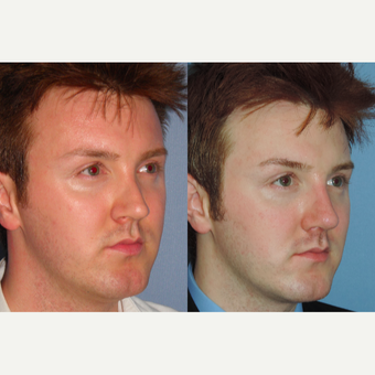 25-34 year old man treated with Revision Rhinoplasty before 3521820