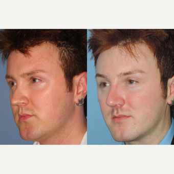 25-34 year old man treated with Revision Rhinoplasty after 3521820