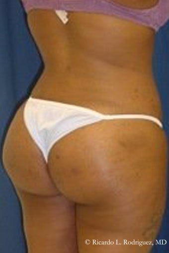 Brazilian Butt Lift after 101291