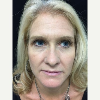 43 year old woman treated with Injectable Fillers to create a Liquid Facelift before 3223708