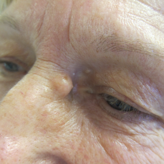 62 year old woman treated with Cyst Removal from beside eye before 3841628