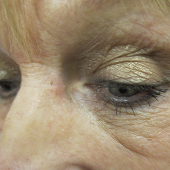 62 year old woman treated with Cyst Removal from beside eye after 3841628