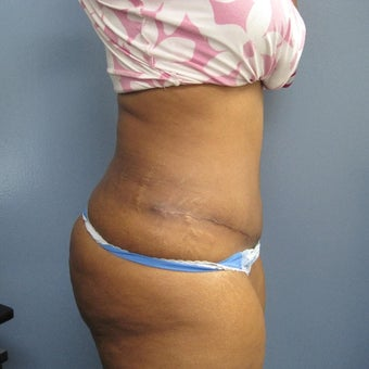45-54 year old woman treated with Tummy Tuck 1842249