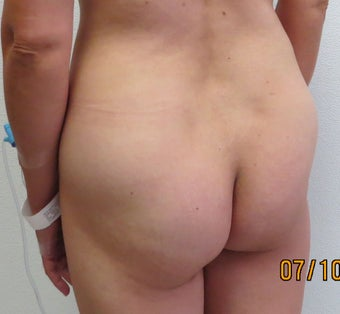 Brazilian Butt Lift | 41 Year Old Woman  1447027