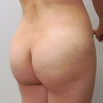 Brazilian Butt Lift | 41 Year Old Woman  after 1447027