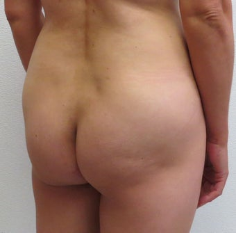 Brazilian Butt Lift | 41 Year Old Woman  before 1447027