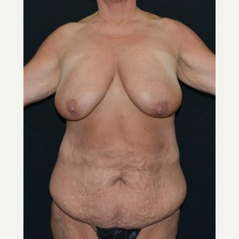 45-54 year old woman treated with Mommy Makeover before 1550998