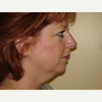 35-44 year old woman treated with Facelift, Chin implant and 4-Lid Blepharoplasty before 3266303