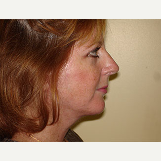 35-44 year old woman treated with Facelift, Chin implant and 4-Lid Blepharoplasty after 3266303