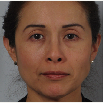 45-54 year old woman treated with Nose Surgery