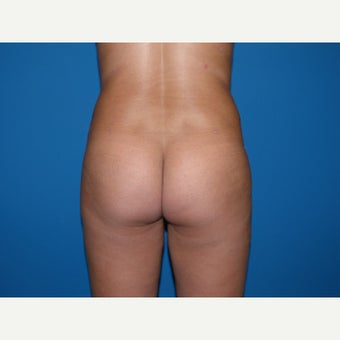 25-34 year old woman treated with Laser Liposuction of flanks