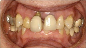 Dental Implant before 135548